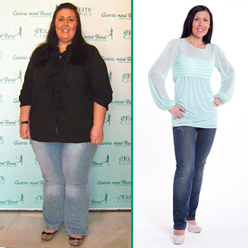 Lost Whopping 144lbs Gastric Mind Band Weight