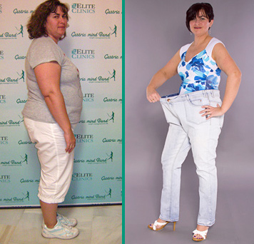Weight Loss success, Weight Loss Spain