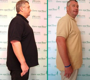 Gastric Band Reviews