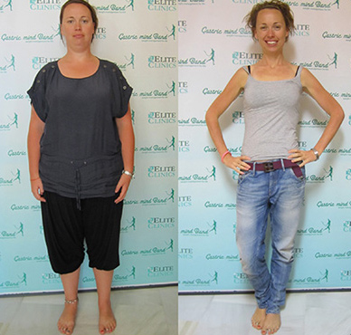 Lose 100 pounds Fat, Katie Drew