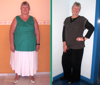 Permanent 105 lb weight loss Kay Lindley