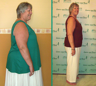 Does Hypnotherapy Work for Weight Loss? | Hypnosis Clinical Evidence