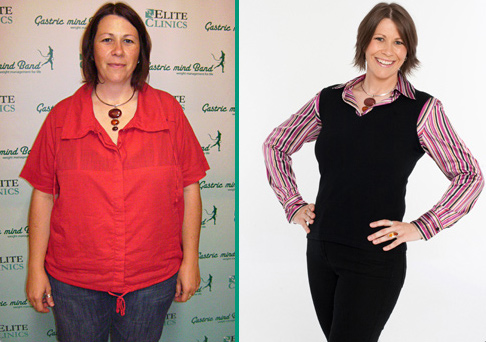 52lbs fat disappeared Laura J. Graham