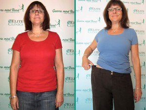 Gastric Band Side Effects
