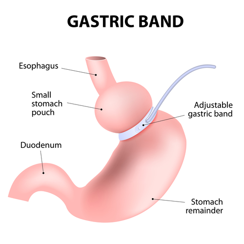 hypnotic gastric band cost
