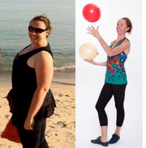 Katie lost 100 pounds with the Gastric Mind Band Treatment.