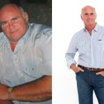 Martin lost over 70 pounds following his GMB treatment