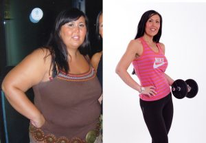 Sarah lost half her body weight following her GMB treatment.