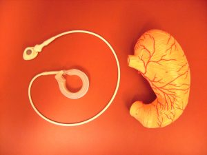 Alternatives to weight loss gastric band surgery