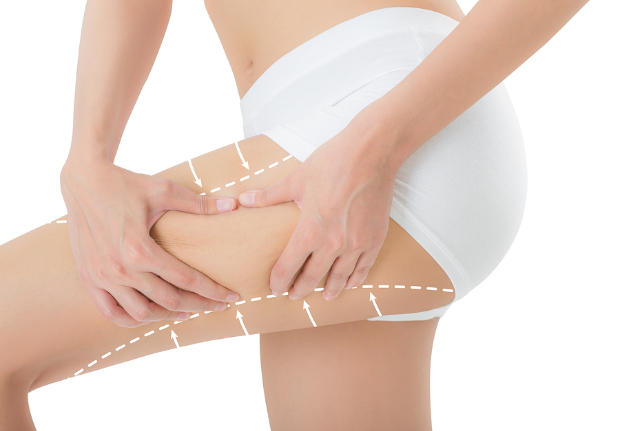 3D Liposuction   Non-Surgical Liposuction   GMBand